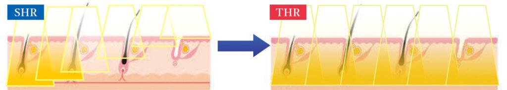 SHR,THR肌への光の馴染み方違い